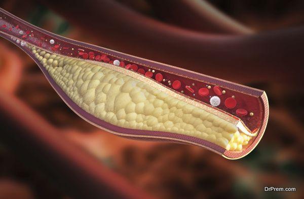 cholesterol under control